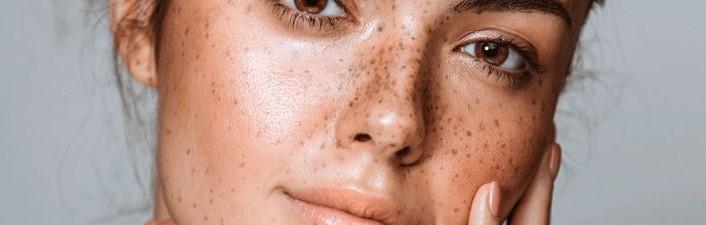 Macchie della pelle